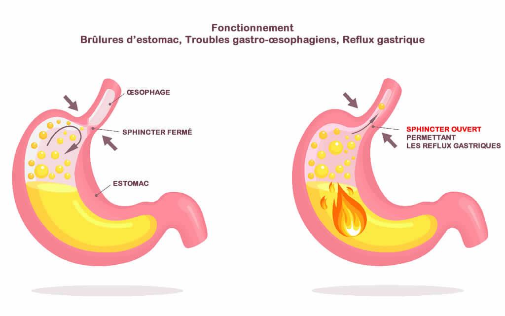 Fonctionnement Brûlures d'estomac, Reflux gastrique, Troubles gastro-œsophagiens