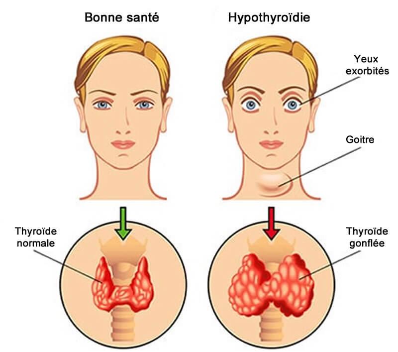 Symptomes hyperthyroidie