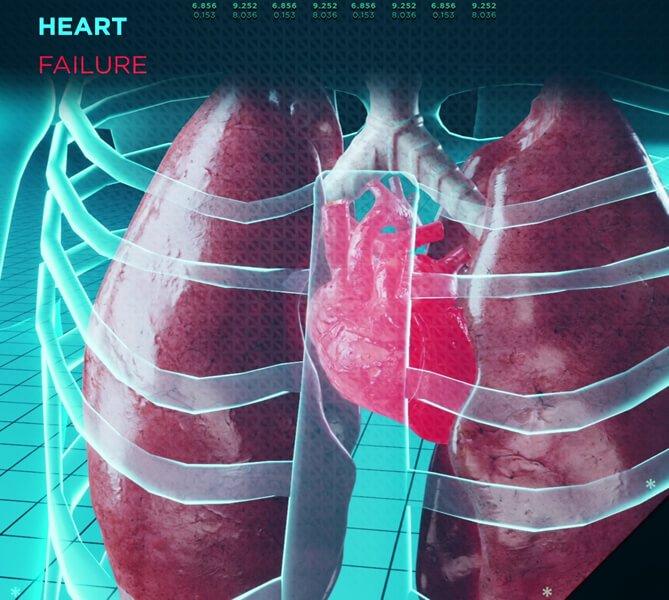 Pathologies cardiaques et les causes