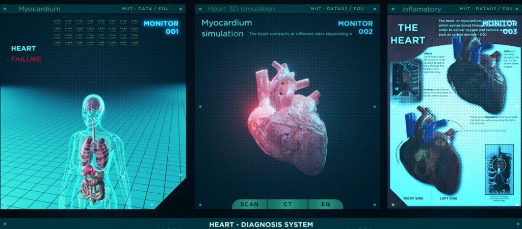 Les differentes maladies du cœur